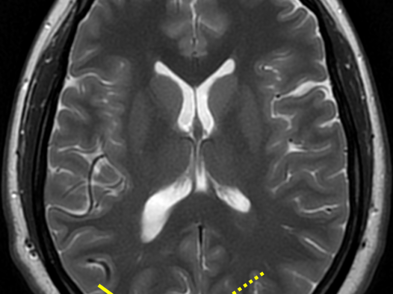 D. Axial T2 PROPELLER image at a level superior to (C) shows the heterogenous tangle of vessels (nidus, solid arrows) and low signal large draining vein (dashed arrow). PROPELLER sequences are applied to DWI, FLAIR, and T2 for motion reduction.