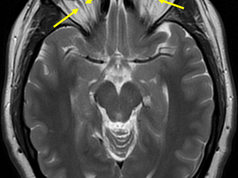 E. Axial T2 PROPELLER image at a level inferior to (C) shows excess high signal cerebrospinal fluid (arrows) surrounding the low signal optic nerves. This represents nerve sheath dilatation and is consistent with increased intracranial pressure. There is also optic disc cupping indicative of papilledema.