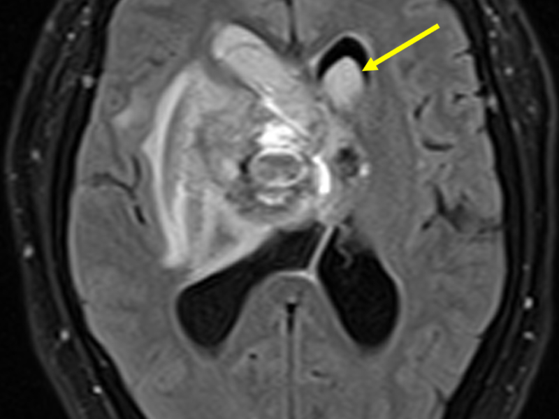 B. Axial FLAIR image inferior to (A) shows extension of blood into the frontal horn of the left lateral ventricle (arrow).