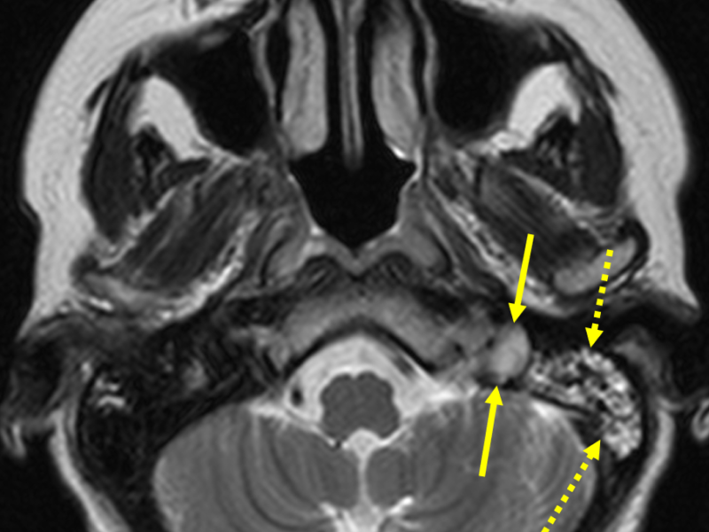 C. Axial T2 RESTORE image at a level inferior to (A) shows the left proximal internal jugular vein (IJV) to be of abnormal high signal (solid arrows), consistent with slow flow or thrombosis. This could be differentiated with MR venography. Note high signal within the left mastoid sinus (dashed arrows), which may represent edema or congestion altering the venous flow and causing left IJV thrombosis.