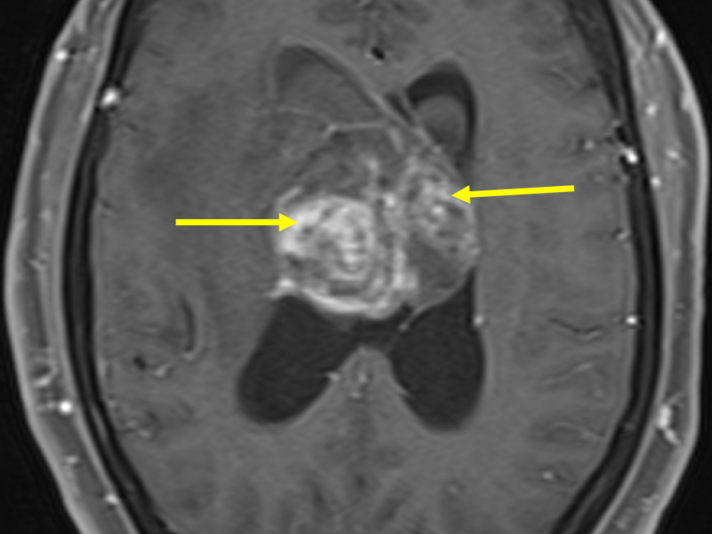 F. Axial T1 FS image, inferior to (E), post contrast shows heterogeneous high signal enhancement (arrows).