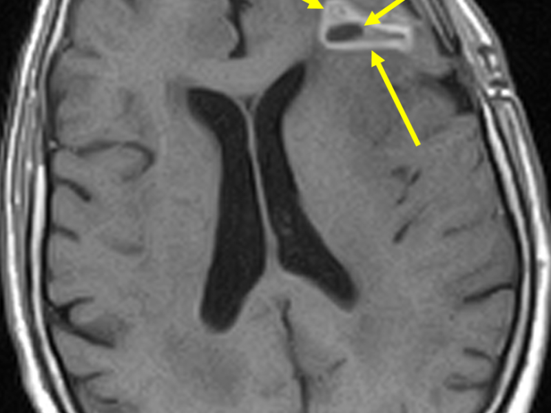 B. Axial T1 SE image at the same level as (A) post contrast shows a central low-signal necrotic focus ( short arrow) and surrounding thick, irregular high-signal enhancement (long arrows). There is no meningeal enhancement or evidence of leptomeningeal seeding.