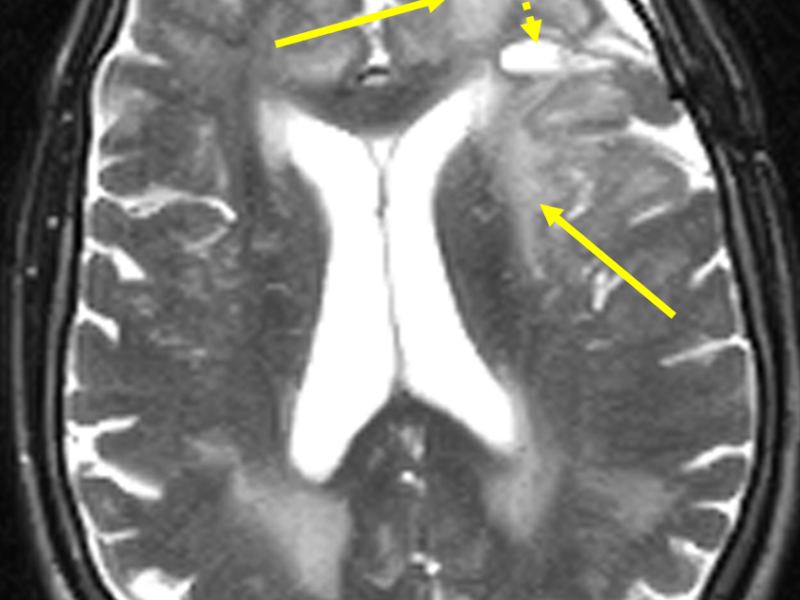C. Axial T2 FSE image at the same level as (A) shows marked high-signal vasogenic edema (solid arrows). The signal characteristics of the central portion of the mass (low signal on T1 and high signal on T2) is consistent with cystic necrosis (dashed arrow).