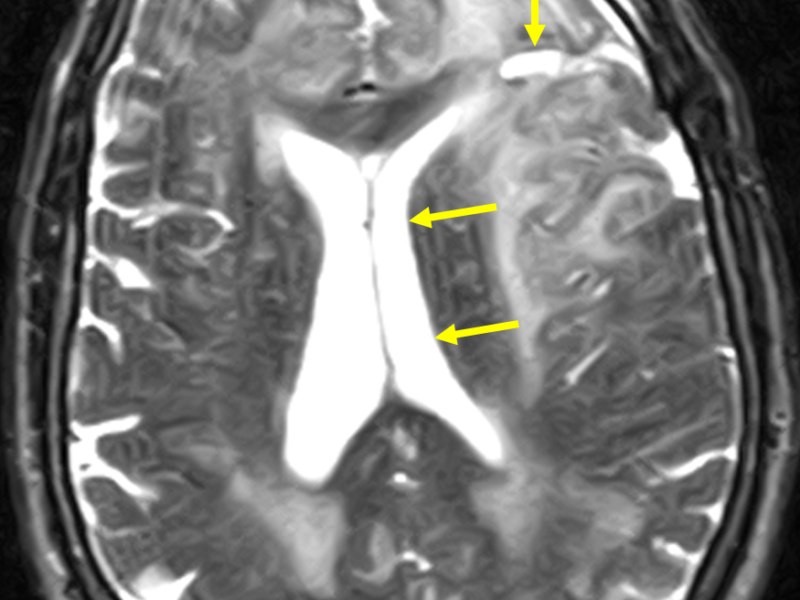 D. Axial T2 FSE image at the same level as (A) post chemotherapy and radiation treatment shows decreased size of the cystic mass (long arrow), increased high signal abnormality posteriorly, greater mass effect on the left lateral ventricle (short arrows), and greater sulcal effacement. Extensive white matter changes involving the periventricular, left frontoparietal, and right frontal areas may represent a combination of post treatment effects and infiltrating neoplasm.