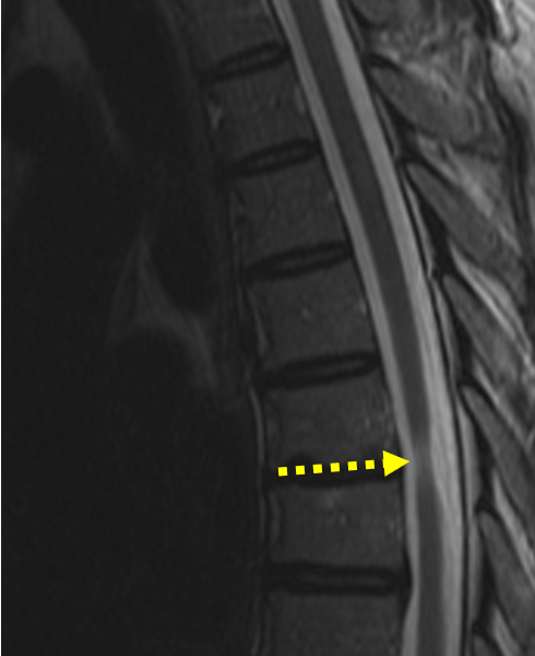 Multiple sclerosis in a 44-year-old man with exacerbation of symptoms for six months. A. Sagittal T2-weighted MR image of the thoracic spine shows a subtle focus of high signal within the spinal cord at T2 (solid arrow). There is also focal high signal at T7-8 (dashed arrow), associated with cord atrophy, consistent with chronic disease.