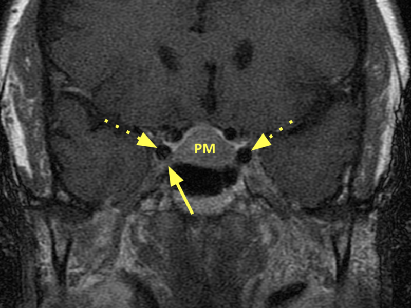 (D) Coronal T1 SE 3mm slice post-contrast, anterior to (C), shows the tumor (PM) extending into the right cavernous sinus (solid arrow); there is no effacement of the carotid arteries (dashed arrows).