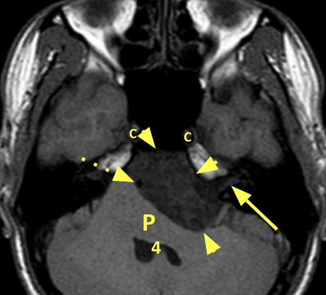 Epidermoid cyst in a 26-year-old male. A. Axial T1 image shows a 7 cm undulating low signal mass (short arrows) in the left cerebellopontine angle. The basilar artery (dashed arrow) is displaced to the right and the posterior pons (P) and 4th ventricle (4) are compressed. The left vestibulocochlear nerve is displaced posteriorly (long arrow). The internal carotid arteries are patent (C).