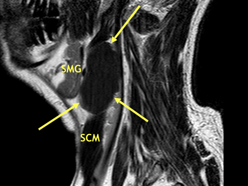 C. Sagittal T2 SE image shows the mass (arrows) to be homogeneously hypointense, consistent with accumulation of proteinaceous debris or hemorrhage. The BCC is posterior to the submandibular gland (SMG) and borders the anterior sternocleidomastoid muscle (SCM) at the mandibular angle.