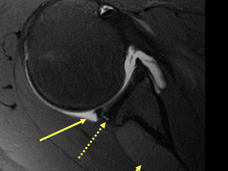 B. Axial PD fat saturated image post direct arthrogram shows intra-articular contrast (long solid arrow), posterior labral tear (dotted arrows) and large intermediate signal paralabral cyst in the spinoglenoid notch (short arrow).