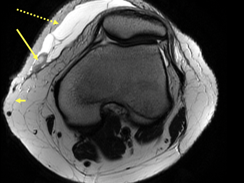 Morel-Lavalle lesion in a 14 year old with recent trauma to the left knee with pain, bruising and swelling. A. Axial T2 of the left knee shows a large T2 hyperintense deep subcutaneous collection (dotted arrow) between the skin and crural fascia (short arrow), with dependently positioned fat globules (long arrow) typical for a Morel-Lavallee lesion.