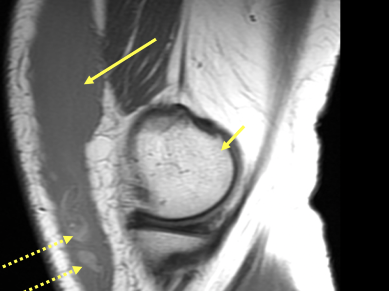 B. Sagittal T1 of the left knee shows a large intermediate to low T2 signal collection (long solid arrow), with dependently positioned fat globules (dotted arrows) in the deep subcutaneous tissue anterior to the distal femur (short arrow).