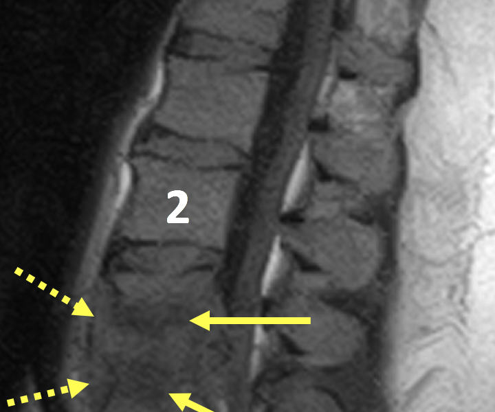Vertebral discitis-osteomyelitis (VDO) in a 44-year-old man with back pain. A. Sagittal T1 SE MR image shows abnormal hypointense signal within the L3 and L4 vertebral bodies (arrows) and intervening disc, as well as complete destruction of the inferior end plate of L3 and the superior end plate of L4. There is low signal prevertebral soft tissue fullness (dashed arrows). The L2 (2) and L5 (5) vertebral bodies are normal in appearance.