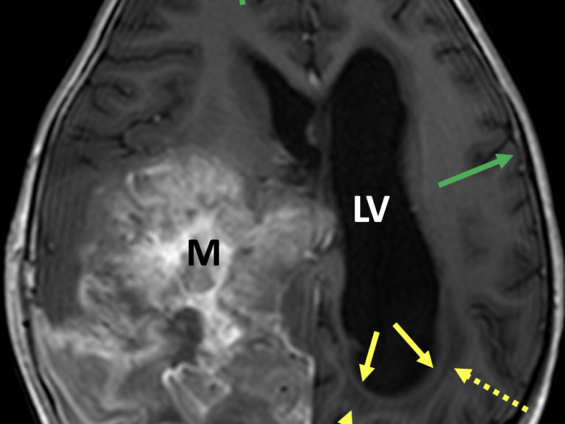 Hydrocephalus in a 4-year-old girl post biopsy of a large right hemispheric embryonic tumor. A. Axial 3D FFE MR image post contrast shows enlargement of the left lateral ventricle (LV) and midline shift, secondary to a large heterogeneous enhancing mass (M). Note low signal periventricular fluid representing transependymal flow of CSF (dashed arrows), rounding of the horn of the left lateral ventricle (solid yellow arrows), and squaring of the gyri abutting the calvarium (green arrows). The sulci are not enlarged.