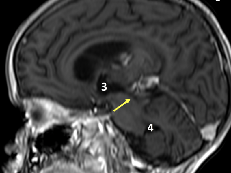 C. Sagittal 3D FFE image post contrast, inferior to (B), shows a patent aqueduct of Sylvius (arrow) carrying CSF to the 4th ventricle (4). The 3rd ventricle (3) is enlarged and deviated anteriorly. Blurring is due to motion artifact.
