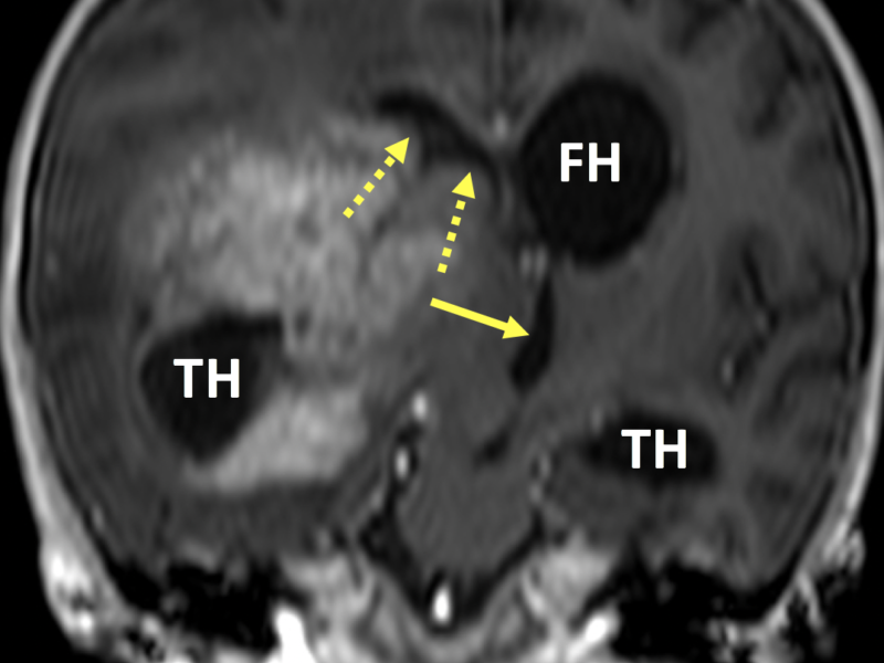 """D. Coronal 3D FFE image post contrast shows compression on and leftward deviation of the third ventricle (solid arrow) by a large enhancing mass. There is effacement of the frontal horn of the right lateral ventricle (dashed arrows) and enlargement of the left frontal horn (FH) and both temporal horns (TH). The right temporal horn is """"entrapped"""", meaning it secretes CSF but does not freely communicate with the rest of the lateral ventricle. Blurring is due to motion artifact."""