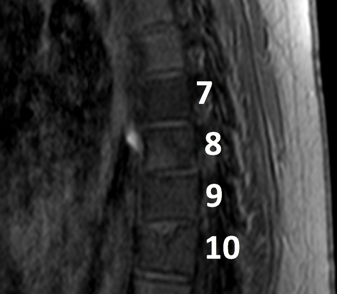 Hodgkin disease in an 18-year-old woman post chemotherapy. A. Sagittal T1 turbo spin echo (TSE) MR image shows abnormal low signal within vertebral bodies T7-10. There is no vertebral body collapse.