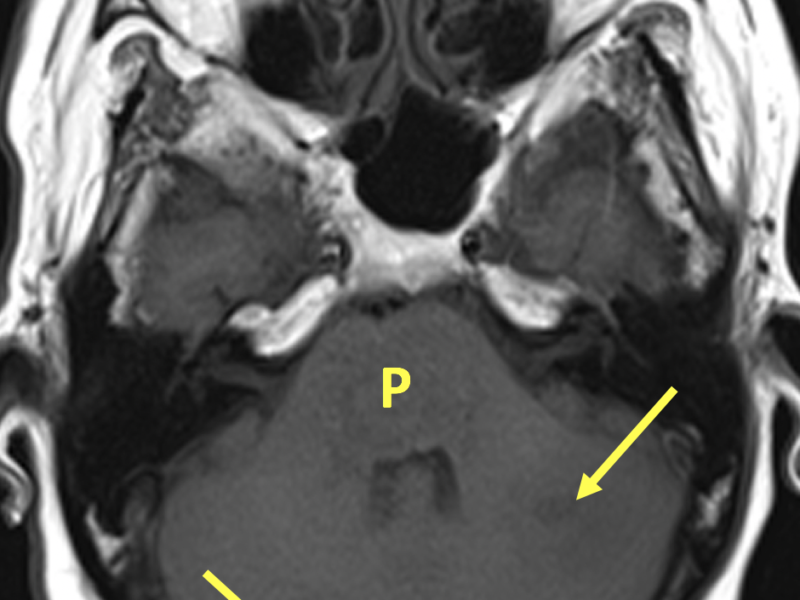 Hemorrhagic and non-hemorrhagic intraparenchymal brain metastases in a 53-year-old woman with dysphagia, altered mental status, and a history of lung cancer. A. Axial T1-weighted MR image shows heterogeneous signal in the pons (P) but no discrete lesion and two lesions within the right and left cerebellar hemispheres (arrows).
