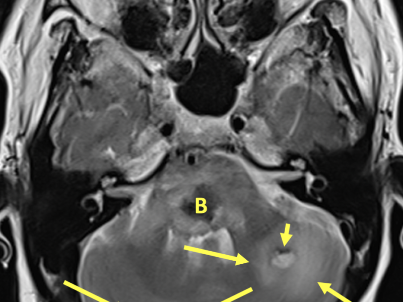 B. Axial T2 image at the same level as (A) shows a 2.7 cm mixed signal lesion within the pons. The central area of low signal represents blooming artifact (B) and signals hemorrhage. There is surrounding high signal edema. Similar appearing smaller lesions are identified within the right and left cerebellar hemispheres with rim-like blooming artifact (short arrows) and surrounding high signal edema (long arrows).