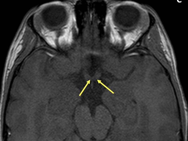C. Axial T1 3D FFE image shows a normal optic chiasm (arrows).