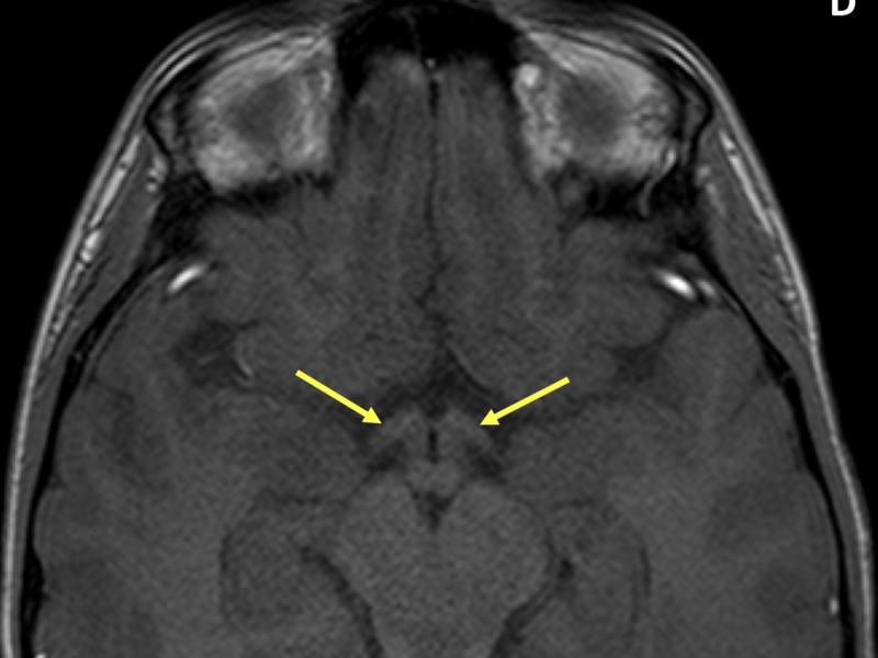 D. Axial T1 3D FFE image shows normal optic tracts (arrows).