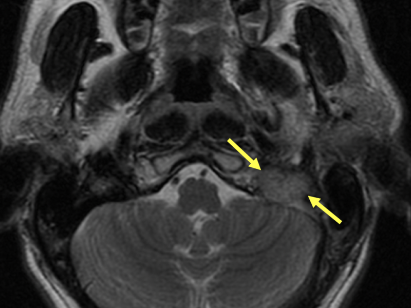 C. Axial T2-weighted MRI superior to (A) and (B) shows a 2 cm hypervascular mass (arrows) in the left jugular foramen, occluding the left jugular vein, consistent with a glomus jugulare tumor.