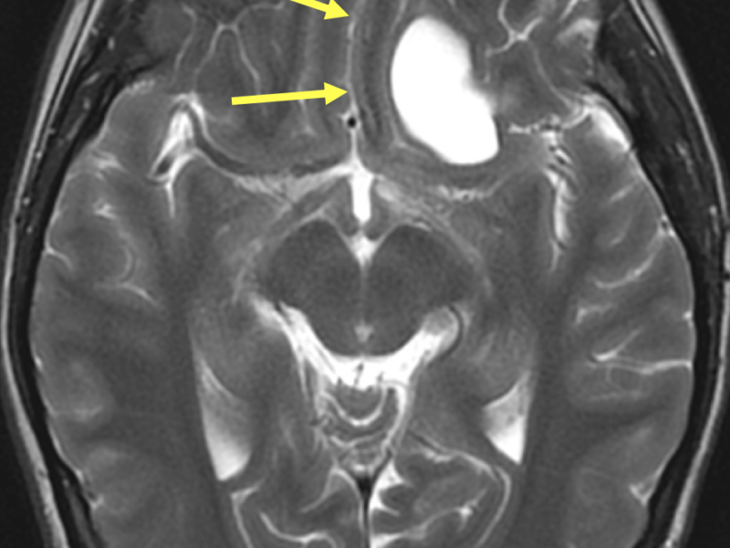 B. Axial T2 FSE image at the same level as (A) shows the cystic mass to be hyperintense and associated with mild mass effect (arrows).