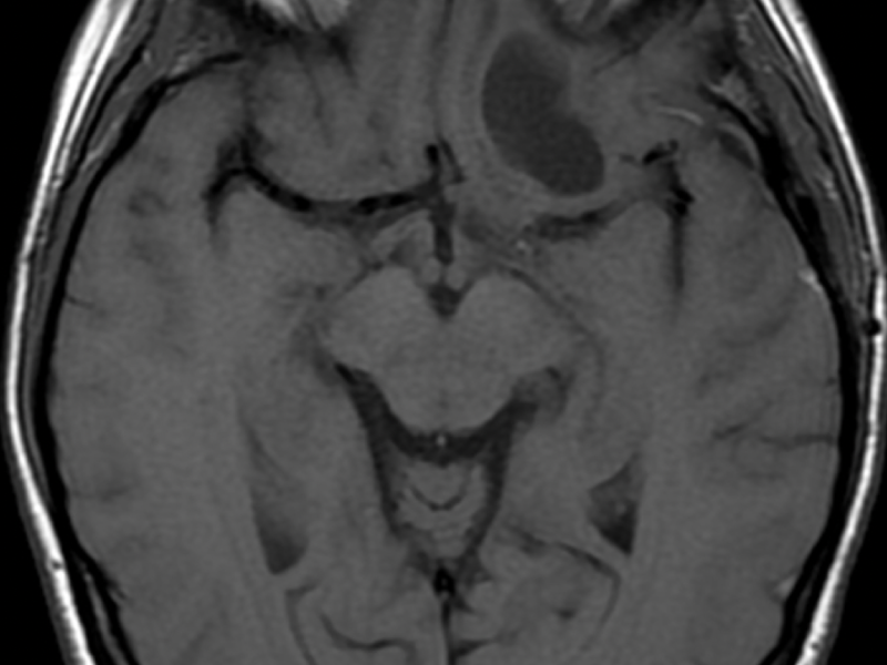 C. Axial T1 image post-contrast administration shows no enhancement of the mass (however, absence of normal enhancement elsewhere in the brain raises the question of the timing and effectiveness of the contrast examination).