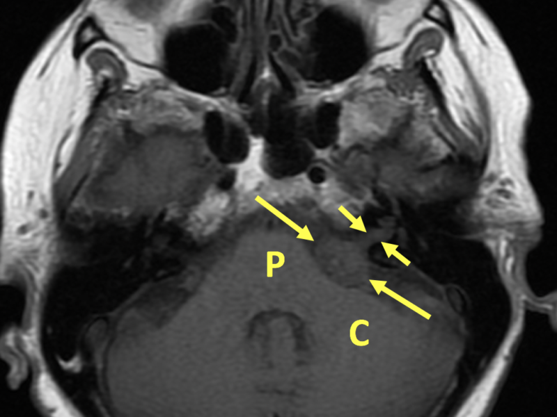 Vestibular schwannoma in a 65-year-old woman with ataxia. A. Axial T1-weighted MR image shows a 2 cm slightly hypointense left cerebellopontine angle (CPA) mass (long arrows) extending into the internal auditory canal (IAC, short arrows). P=pons, C=cerebellum.