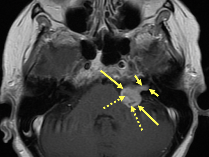 B. Axial T1 FSE with contrast at the same level as (A) shows heterogeneous avid enhancement of the CPA mass (long solid arrows) extending into the expanded IAC (short solid arrows). Hypointense areas within the mass (dashed arrows) may represent cystic foci. The vestibulocochlear (8th) nerve which is comprised of the 1) vestibular nerve (controls balance) and the 2) cochlear nerve (transmits sound) travels through the IAC.