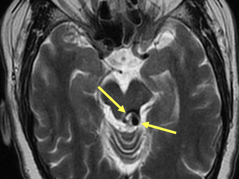 "62-year-old man with a cavernous malformation. Axial T1 FSE (A), Axial T2 (B), and Sagittal T1 FLAIR (C) images show a 1.2 cm mass (arrows) with a reticulated pattern of mixed signal intensity (so-called ""popcorn"" or ""mulberry"" appearance due to multiple episodes of hemorrhage), with a hypointense rim of hemosiderin. The mass is exophytic and centered slightly to the left of midline at the level of the left superior colliculus of the midbrain extending inferiorly to the superior medullary velum. No acute hemorrhage is identified."