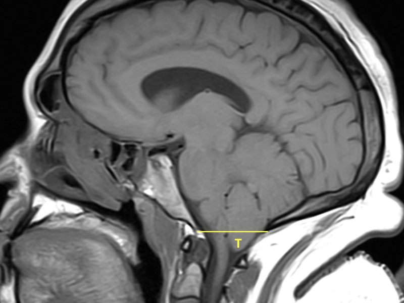 "Chiari I malformation in a 29-year-old woman with headaches and neck pain. Sagittal T1 FSE image shows ""pegging"" of the displaced cerebellar tonsils (T), which extend 8 mm below the foramen magnum (yellow line). No upper cervical syrinx is seen."