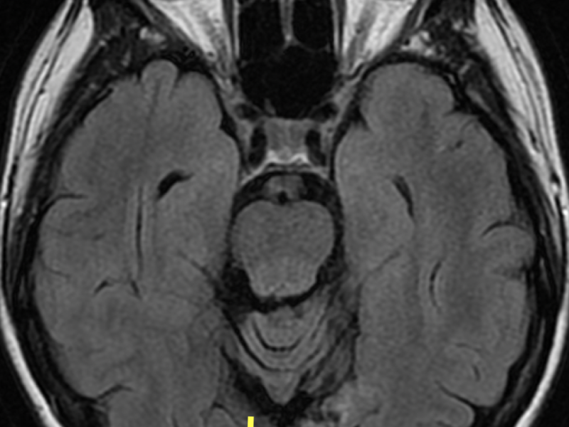 B. Axial T2 FLAIR image at the same level as (A) shows the areas of encephalomalacia (E) to be the same low signal as that of cerebral spinal fluid, and surrounding gliosis (arrows) to be high signal.