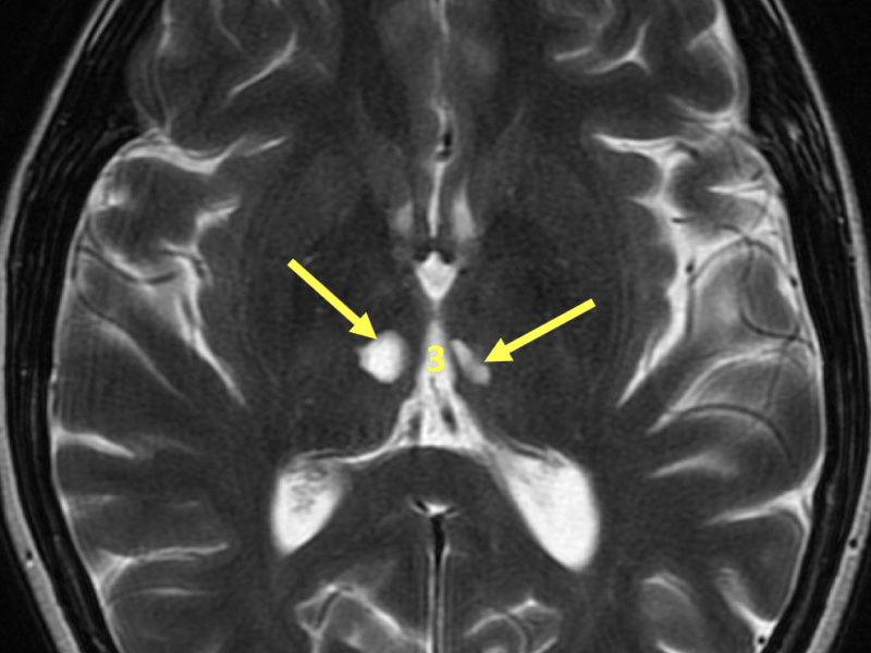 C. Axial T2 image at the level of the third ventricle (3) shows areas of high signal (arrows) in the thalami bilaterally.