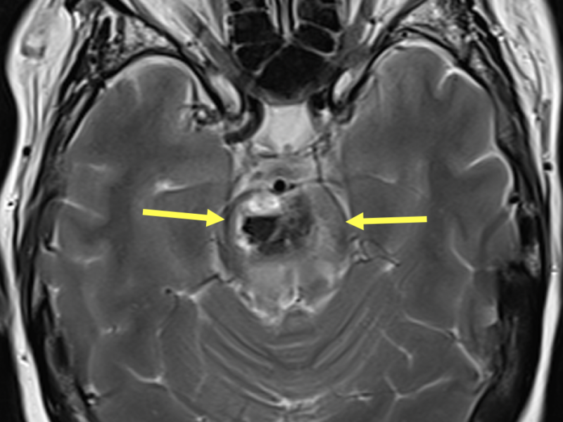 Multiple hemorrhagic metastases in a 53-year-old female with dysphagia, altered mental status, and a history of lung and spine cancer. A. Axial T2-weighted MRI shows a 2.7 cm mixed signal lesion within the pons (arrows) with a moderate amount of surrounding edema.