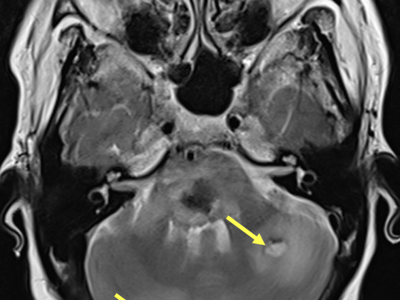 C. Axial T2-weighted image at a level inferior to (A) and (B) shows two high signal hemorrhagic lesions within the cerebellum (arrows).  Each has a low signal rim consistent with hemosiderin and both exhibit marked surrounding high signal edema.
