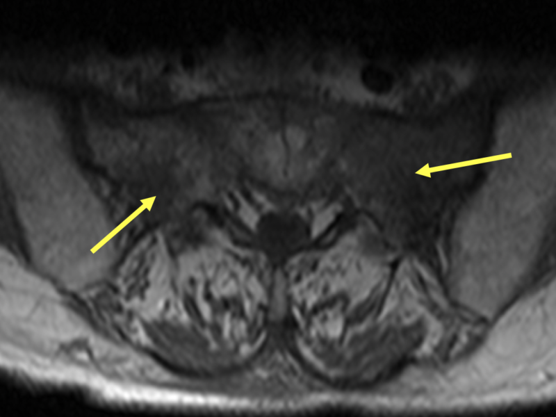 B. Axial T1 MR image shows hypointense areas in the sacrum bilaterally (arrows), left greater than right, consistent with edema.