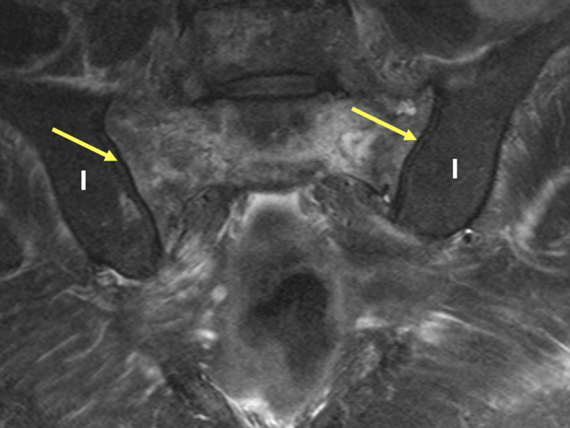 C. Coronal T2 FS MR image shows mottled areas of hyperintense signal throughout the sacrum. Note normal signal within the iliac bones (I) for comparison. The sacroiliac joints are normal (arrows).