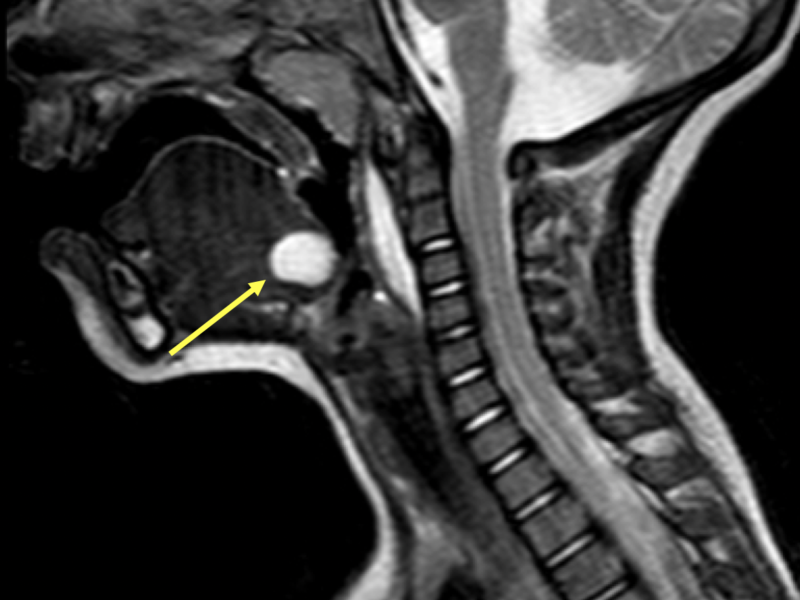 Thyroglossal duct cyst in a 1-year-old boy. A. Sagittal T2 SE midline MR image demonstrates a hyperintense, cystic lesion at the base of the tongue (arrow), which corresponds to the foramen cecum, the embryological origin of the thyroid tissue. Prevertebral high signal is related to a lymphatic malformation.
