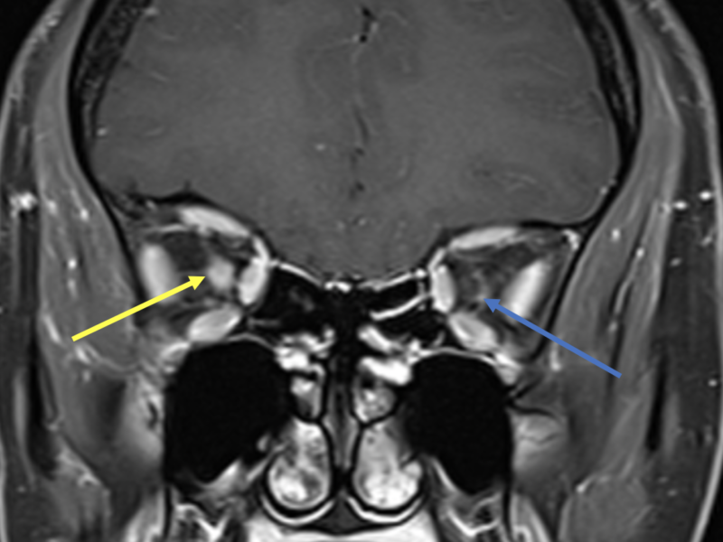 B. Coronal T1 post-contrast FS image at the same level as (A) shows abnormal enhancement of the right optic nerve (yellow arrow) and normal thin peripheral enhancement of the left nerve sheath (blue arrow).