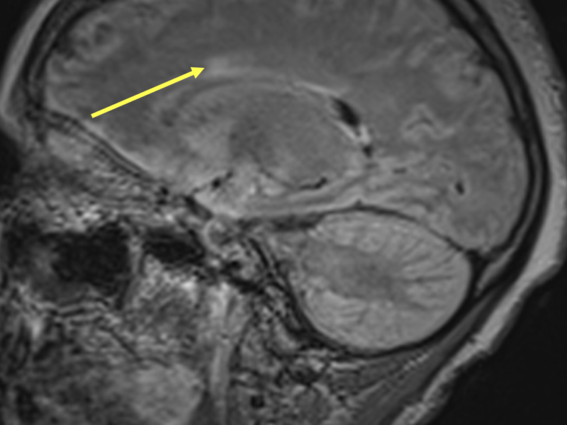 C. Sagittal T2 FLAIR image of the brain demonstrates perivenular hyperintensity (arrow) arising perpendicular to the corpus callosum, which is a common finding in multiple sclerosis.