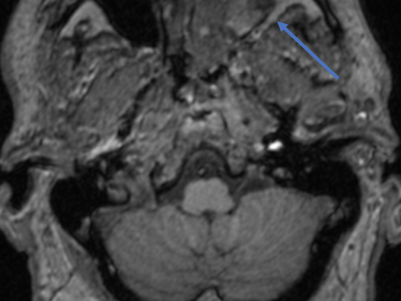 Inverted papilloma in a 73-year-old male with an intranasal mass on physical examination. A. Axial T1 pre-contrast MR image at the level of the maxillary sinuses shows heterogeneous signal within the left maxillary sinus (yellow arrow) and left nasal cavity, without expansion or invasion of the retromaxillary fat (blue arrow).