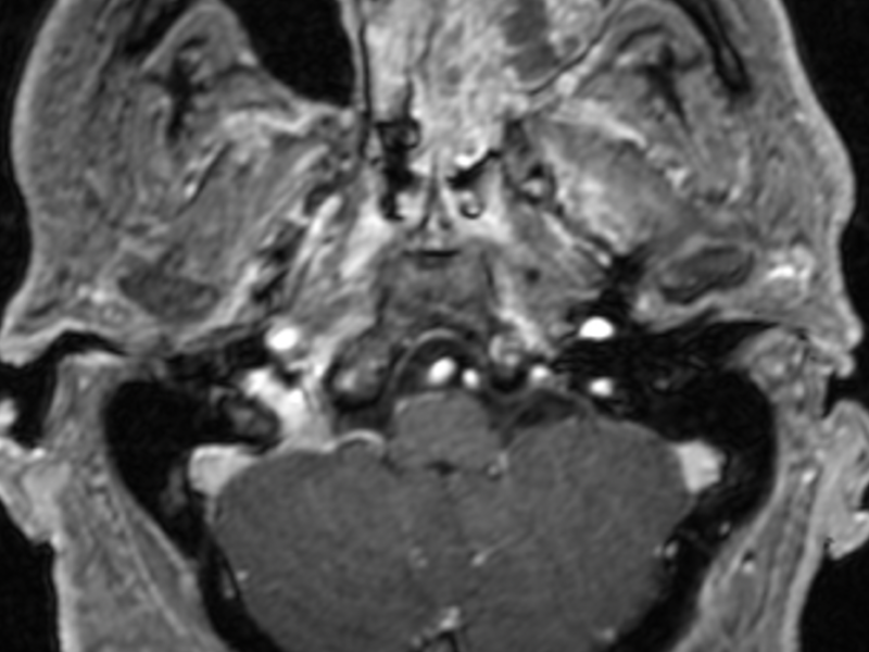 B. Axial T1 post-contrast image at the same level as (A) shows heterogeneous enhancement of the left maxillary sinus (arrow) and nasal cavity, confirming a solid mass. Differential considerations include an inverted papilloma, inflammatory polyp or antrochoanal polyp.