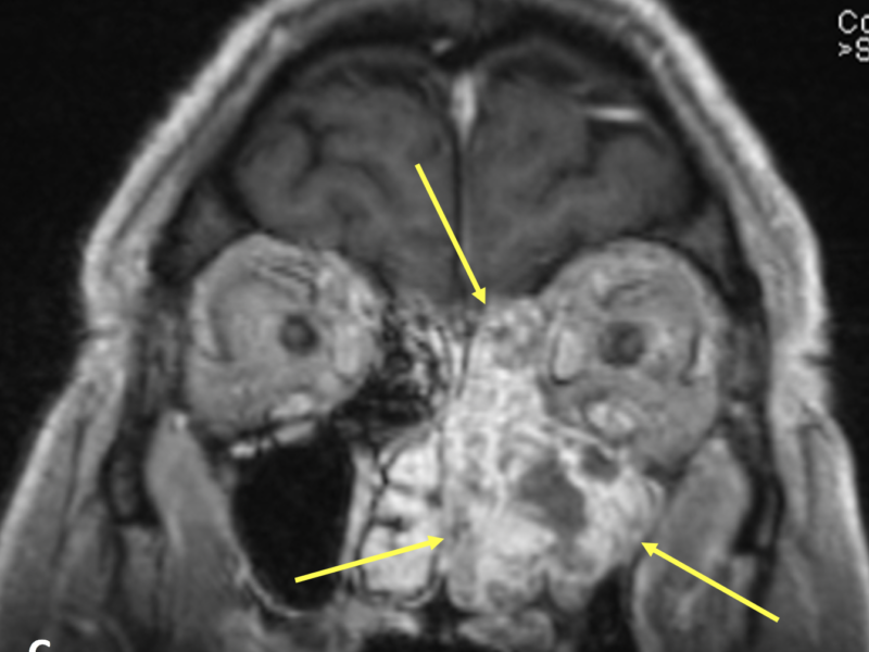 C. Coronal T1 post-contrast reformatted image demonstrates the mass (arrows) filling the left maxillary sinus and nasal cavity, and extending into the left ethmoid air cells. The cortical bone along the medial and inferior orbital wall and anterior cranial fossa is poorly evaluated, but no obvious invasion is seen. CT is complementary to MRI in characterizing masses with potential bone involvement.