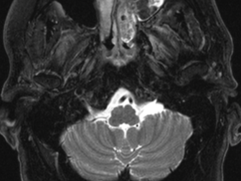 """D. Axial T2 FS image shows heterogeneous """"cerebriform"""" signal (arrow) of an inverted papilloma. These masses are resected because of nasal obstruction and because around 10% harbor malignancy, typically squamous cell carcinoma."""