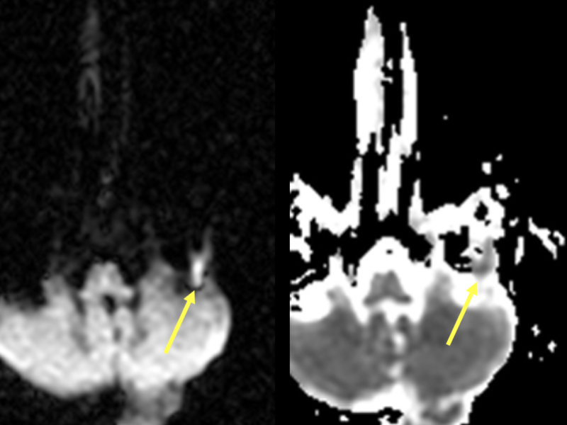 D and E. Axial DWI image shows increased signal in the left mastoid and middle ear (D, arrow), corresponding to low signal on the ADC map (E, arrow), representing restricted diffusion. These are key findings of a cholesteatoma.