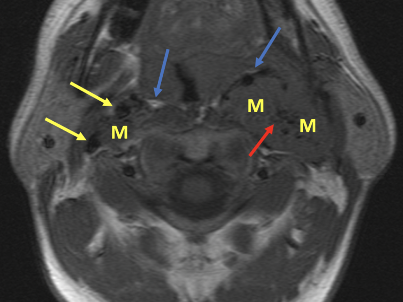 "Cervical paragangliomas in a 41-year-old male. Axial T1 SE MR image immediately above the carotid bifurcation shows right and left carotid space masses (M), left larger than right. On the right, the mass is seen splaying the internal and external carotid artery flow voids (yellow arrows), characteristic of a ""carotid body"" glomus tumor. Note bilateral anteromedial displacement of the parapharyngeal high-signal fat (blue arrows), which confirms the carotid space location. The ""salt and pepper"" appearance (red arrow) is caused by black flow voids and white dots of slow flow or hemorrhage."