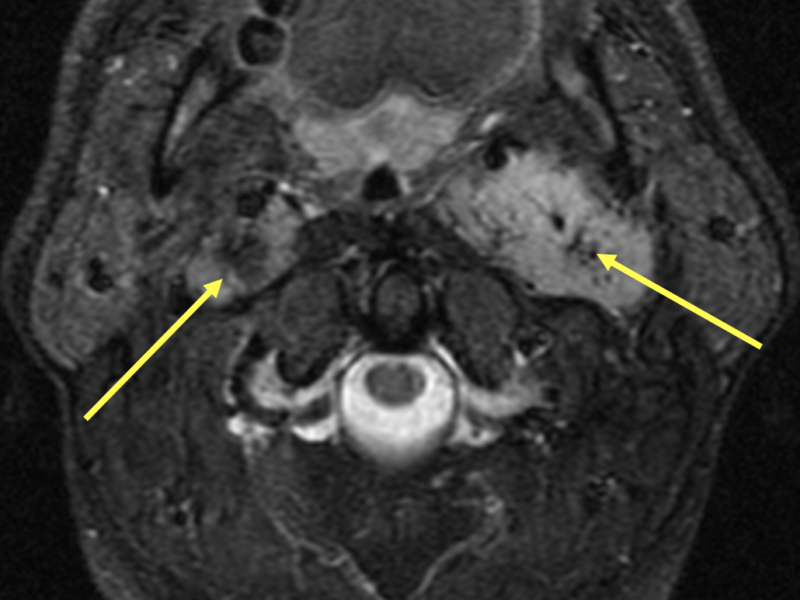 B. Axial T2 FS image at the same level as (A) demonstrates bright carotid space masses corresponding to paragangliomas. The black dots are flow voids (arrows).
