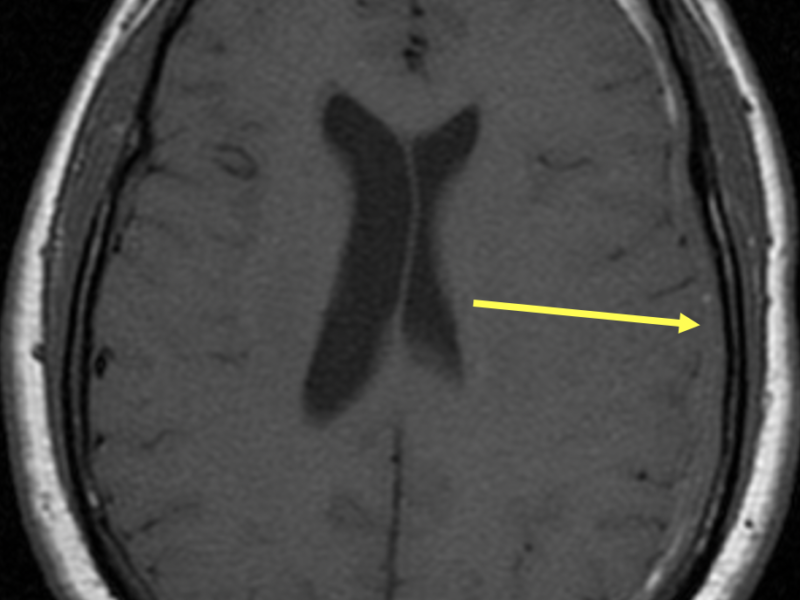 Intracranial hypotension in a 64-year-old man with a subdural hematoma and long-standing headaches. A. Axial T1 SE MR image at the level of the lateral ventricles shows an extra-axial fluid collection that is predominantly isointense to brain tissue along the left frontal and parietal lobes (arrow), representing subdural hematoma.