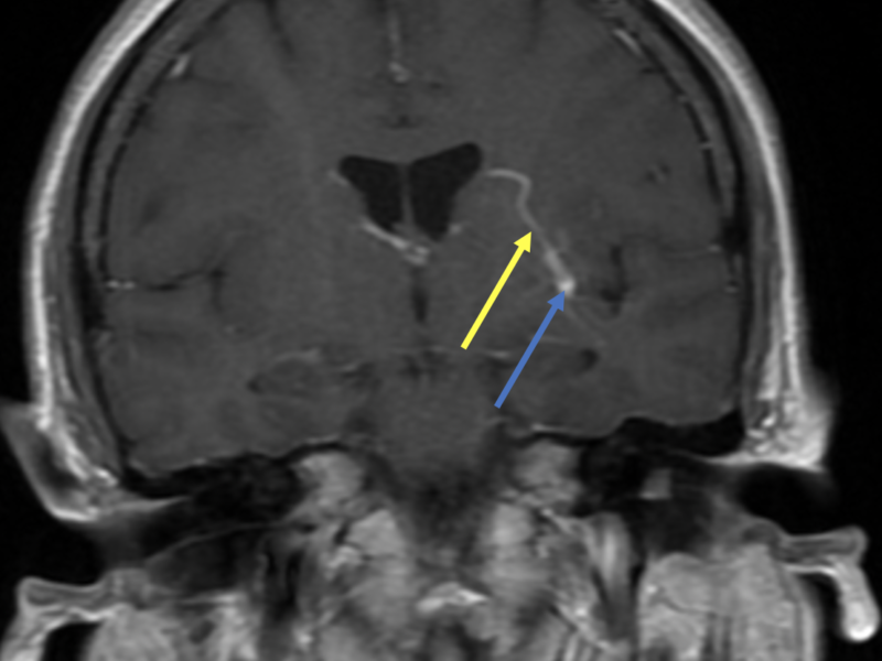 D. Coronal T1 post-contrast image shows an enhancing cavernous malformation (yellow arrow) in the left insula as well as a bright, enlarged draining vein (blue arrow), of a developmental venous anomaly.