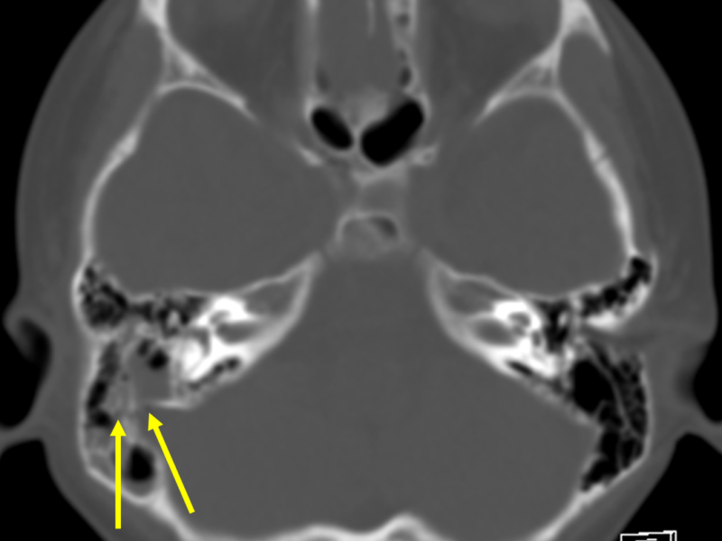 D. Axial CT at a level inferior to (A) with bone windowing shows a longitudinal fracture through the mastoid part of the temporal bone (arrows) with fluid in the mastoid air cells and middle ear. No ossicular disruption is seen.
